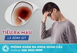 Tiểu ra máu ở nam giới: Triệu chứng nguy hiểm không nên bỏ qua