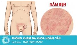 Bệnh nấm bẹn và cách trị hiệu quả dành cho nam giới