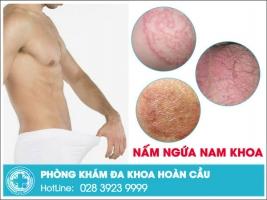 Nguyên nhân nấm ngứa nam khoa do đâu và cách chữa trị hiệu quả nhất