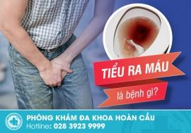 Nguyên nhân khiến nam giới tiểu ra máu là gì?