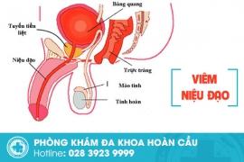 Cần cảnh giác với bệnh viêm niệu đạo ở nam giới