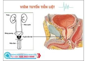 Triệu chứng bệnh viêm tuyến tiền liệt ở nam giới