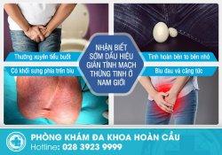 Nhận biết dấu hiệu của giãn tĩnh mạch thừng tinh và hướng điều trị phù hợp